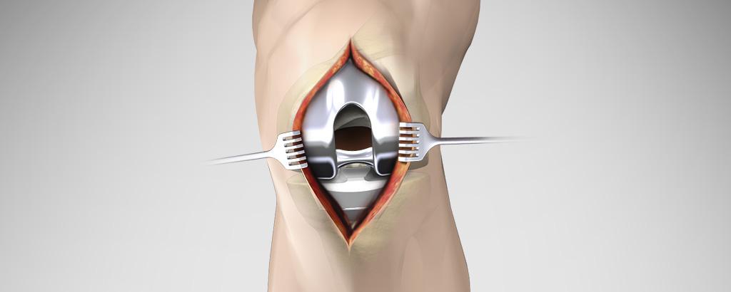 Stryker osteosynthesis kiel